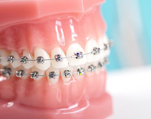 Ortodonție - ProSmile Med Ploiești