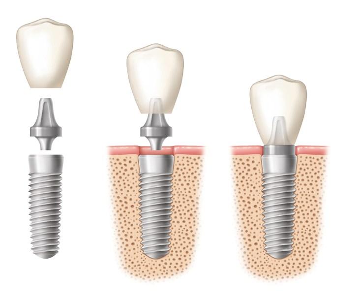 Implantologie dentara ploiesti - ProSmile Med
